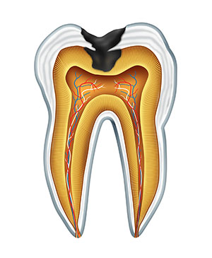 Diagram of a tooth with tooth decay used by Long Island dentist at Long Island Smile.
