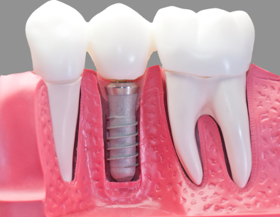 At Long Island Smile we provide you the best experience with Dental Implants