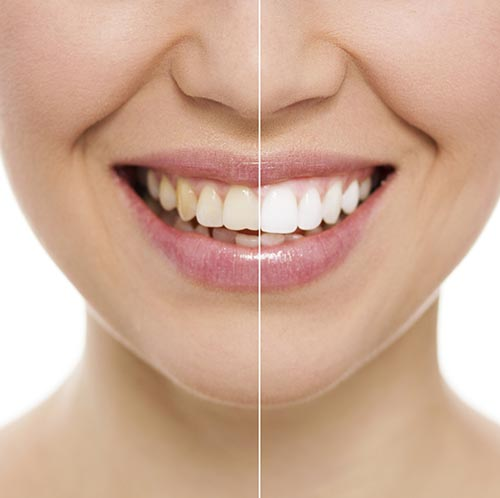 What tooth whitening in williston Park at Long Island Smiles can do for you!