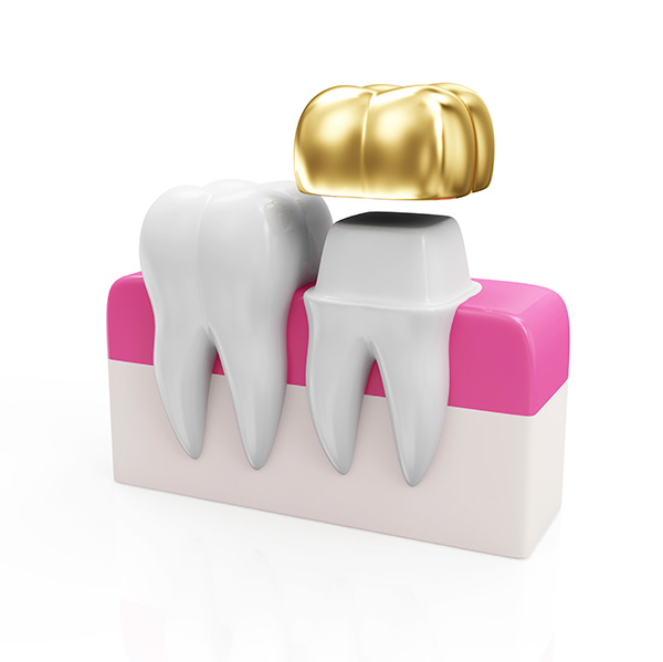 Come let Long Island Smile take care of your dental crown needs!