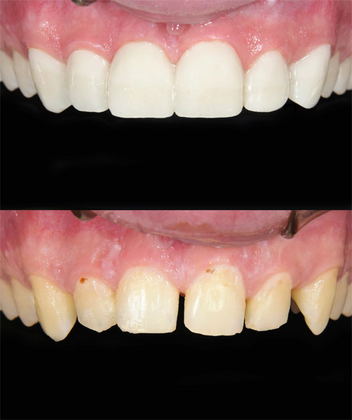 Image of teeth with gap between them and teeth with gap filled with dental bonding by Williston Park Dentist, Long Island Smiles.